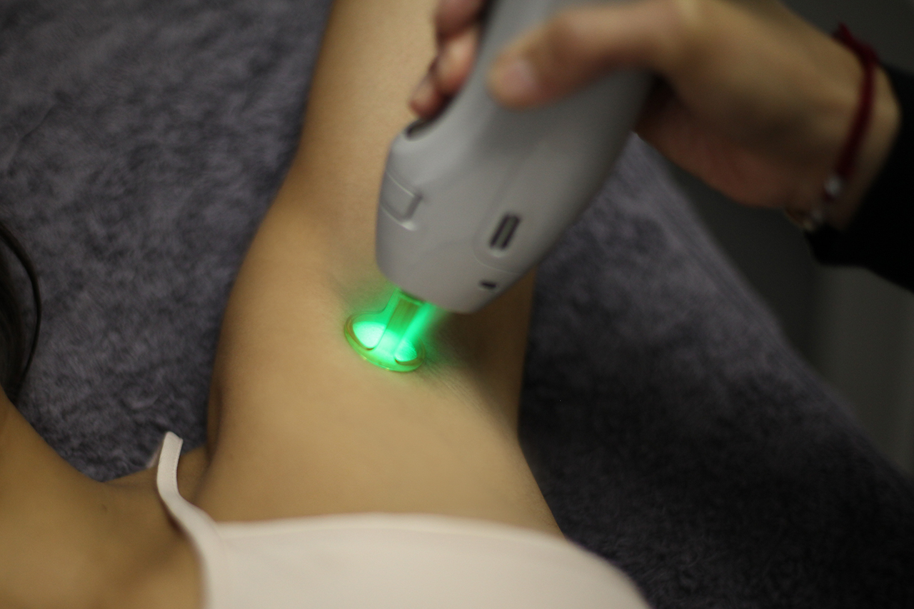 Laser Hair Removal Review